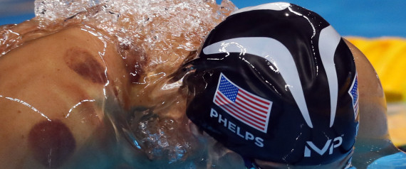 Un médaillé d'or olympique a recourt à la hijama